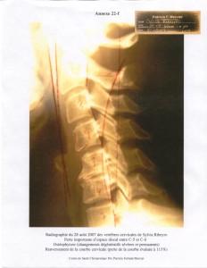 vertèbres cervicales